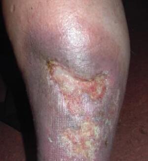 Chronische Wunden wie das offene Bein (Ulcus cruris) sind häufig mit Pseudomonaden infiziert, die Bakteriophagen freisetzen.