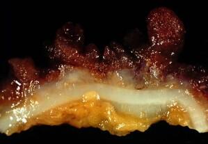 Colitis ulcerosa: Verlust schützender Darmbakterien könnte Krankheitsursache sein thumbnail