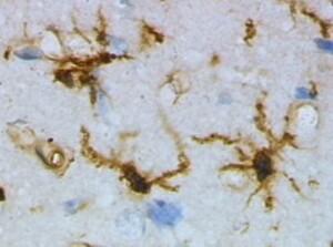 Reaktivierte Immunzellen verjüngen das alte Hirn thumbnail