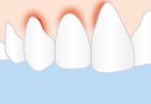 Bluthochdruck bei Parodontitis thumbnail