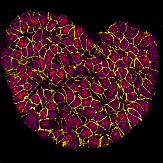 "Gesamtsieger des Wettbewerbs ""BMC 'Research in Progress' photo competition"" ist das Foto von Sarah Boyle (Centre for Cancer Biology, Adelaide) mit dem Titel ""I Heart Research"". Die fluoreszenzmikroskopische Aufnahme zeigt Gewebe des Brusttumors einer Maus. Ein für die Krebsentwicklung wichtiges Protein ist rot markiert. Die Siegerfotos werden in einem Blog (http://blogs.biomedcentral.com/bmcblog/2017/09/29/bmc-research-in-progress-photo-competition-the-winning-images/) vorgestellt."